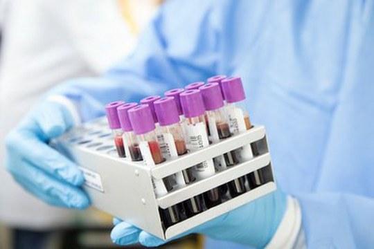Infezione da SARS-CoV-2 e gruppi sanguigni: confermata la possibile connessione